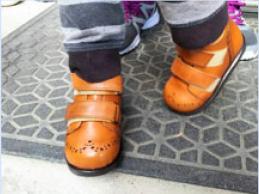 脳性麻痺,内反矯正靴,矯正靴